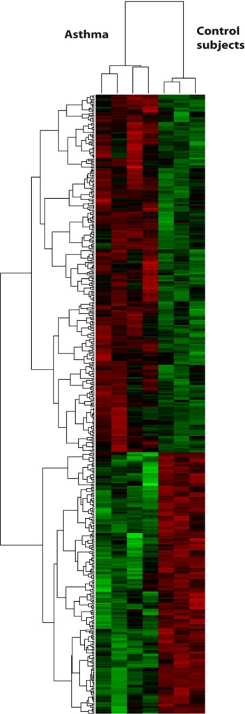 Circulating eosinophils in asthma differ in their gene expression profile when compared to healthy subjects.Heat map of hierarchical clustering of the top expressed genes of circulating eosinophils from subjects with asthma (n = 4) vs healthy controls (n = 3). The horizontal dendrogram represents the relationship between asthmatic and healthy subjects. The vertical dendrogram represents the relationship between the expression levels of each gene across all the samples. Over-expressed genes are shown in red and under-expressed genes are depicted in green.