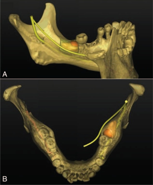 3D reconstruction showed the relationship among inferior alveolar nerve, lingual nerve, and osteotomy line. (A) Lingual view: deep osteotomy should be avoided in case of inferior alveolar nerve injury. (B) Overlook: lingual nerve contacted the lingual plate of the third molar.