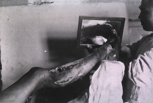 <p>View of a patient's wounded left leg below the knee, and his frostbiten(?) left foot shown in a mirror.</p>
