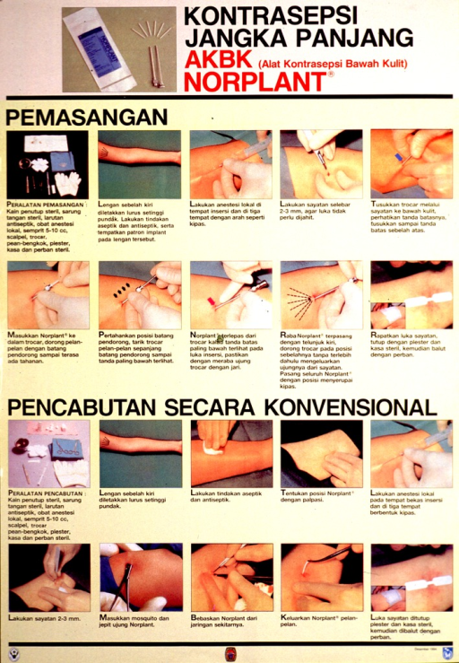 <p>Predominantly yellow poster with black and red lettering.  Title at top of poster.  Color photo reproduction featuring a Norplant package, implants, and needles to left of title.  Twenty additional color photo reproductions show the steps for inserting and removing the implants.  Publisher and sponsor information at bottom of poster.</p>