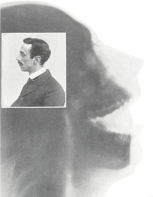 <p>X-ray of a side view of a skeletal head in profile facing right, appearing on top of the x-ray is a photograph of a man in profile facing left. Photographs from The X-Ray, figs. 66, 67.</p>