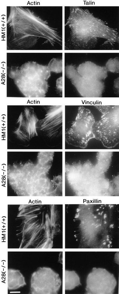 Localization of talin, vinculin, paxillin, and F-actin in  undifferentiated talin (−/−) ES cell mutants by immunofluoresence. Wild-type (+/+) HM1 ES cells and the talin (−/−) A28 ES  cell mutant were seeded onto fibronectin-coated glass coverslips.  After 48 h, the cells were stained for talin and F-actin, vinculin  and F-actin or paxillin and F-actin. Wild-type ES cells form focal  adhesions containing talin, vinculin and associated actin filaments. The talin (−/−) A28 mutant failed to assemble vinculin or  paxillin-containing focal adhesions and lacked actin stress fibers.  Bar, 20 μm.