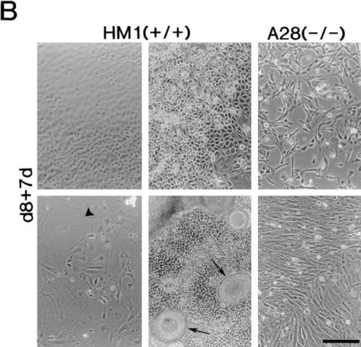 Differentiation capacity of talin (−/−) A28 ES cells. (A) Wild-type ES cells (HM1) and talin (−/−) A28 ES cells were used to  generate embryoid bodies that were cultured in the absence of LIF for 8 d, and then were plated onto gelatin-coated tissue culture  dishes. Embryoid bodies after 8 d in culture in the absence of LIF (d8), d8 embryoid bodies 1 d after plating onto gelatin-coated dishes  (d8+1d), d8 embryoid bodies 2 d after plating onto gelatin-coated (d8+2d). (B) Examples of some of the morphologically distinct cell  types (including giant cells; arrowheads) and structures (arrows) which were observed when d8 wild-type HM1 embryoid bodies were  cultured on gelatin-coated plates for 7 d (d8+7d). The two right hand panels show the only two morphologically distinct cell types observed when the talin (−/−) A28 d8 embryoid bodies were cultured under identical conditions. Bars, 200 μm.