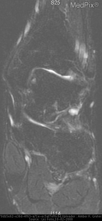 Sagittal FSE T2-weighted MR image with fat saturation shows focus of high signal intensity in the anteromedial aspect of the left talus.