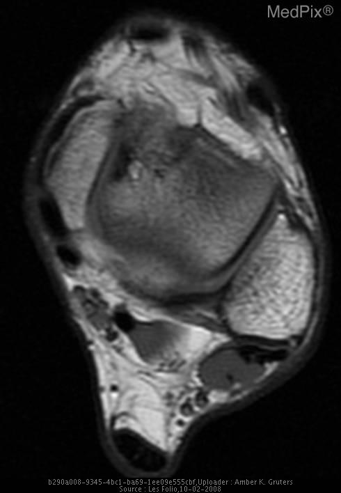 Axial T1-weighted MR imaging ten years later shows focus of decreased signal intensity at the anteromedial talar dome.