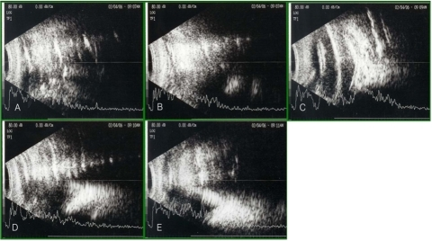 On postoperative day 1, the results of B-scan ultrasonography while patients assumed different positions on eyes undergoing vitrectomy and an 18% SF6 gas tamponade. (A) Supine position: can not evaluate the retinal attachment status. (B) Sitting position: can not evaluate the retinal attachment status. (C) Prone position: can not evaluate the retinal attachment status. (D) Right decubitus position: can not evaluate the retinal attachment status. (E) Left decubitus position: can not evaluate the retinal attachment status.