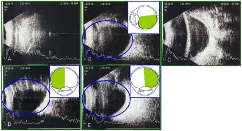 On postoperative day 7, results of B-scan ultrasonography with the patients in different positions of the eyes undergoing vitrectomy and an 18% SF6 gas tamponade. (A) Supine position: can not evaluate the retinal attachment status. (B) Sitting position: can evaluate the retinal attachment status greater than 180°. (C) Prone position: can not evaluate the retinal attachment status. (D) Right decubitus position: can evaluate the retinal attachment status greater than 180°. (E) Left decubitus position: can evaluate the retinal attachment status greater than 180°.