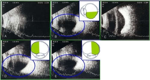 At two weeks postoperatively, results of B-scan ultrasonography with patients assuming different positions on the eyes undergoing vitrectomy and using a 14% C3F8 gas tamponade. (A) Supine position: can not evaluate the retinal attachment status. (B) Sitting position: can evaluate the retinal attachment status greater than 180°. (C) Prone position: can not the retinal attachment status. (D) Right decubitus position: can evaluate the retinal attachment status greater than 180°. (E) Left decubitus position: can evaluate the retinal attachment status greater than 180°.
