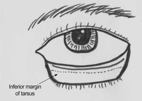 After lateral canthal incision is made down to the periosteum of lateral orbital rim, the conjunctiva is incised 2, 3 mm below the tarsus from a point just lateral to the punctum to the lateral canthal incision site.