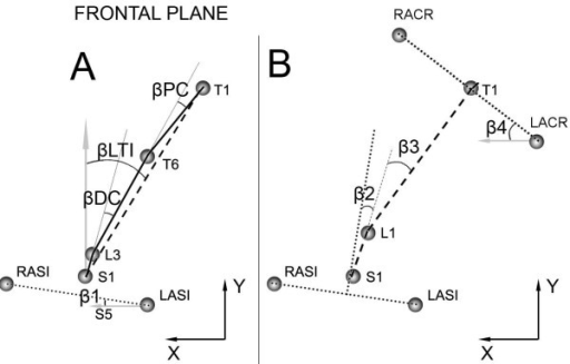 Representation of markers and angles in frontal plane during lateral bending. On the left (Figure 3A) are shown: lateral trunk inclination (βLTI), pelvic obliquity (β1), proximal curvature (PC), distal curvature (βDC). On the right (Figure 3B) are represented: lumbar movement (β2), thoracic movement (β3), and angle of shoulders (β4).