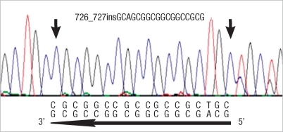 Reverse sequence chromatogram from exon 3 of PHOX2B gene. Heterozygous frameshift mutation (PHOX2B NM_003924 : c.726_727insGCAGCGGCGGCGGCCGCG) was identified in the patient.