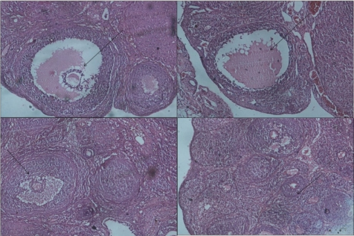Effect oral administration of aloe vera gel formulation (1 ml/45 days) on follicular growth of ovary in letrozole induced PCOS rats (a) CMC control rat showing normal follicular development (H and E ×10) b: Section of ovary from letrozole treated showing small cysts in the follicle (x10) c: Section of ovary from aloe treated group showing normal follicle growth (x10) d: Section of ovary from metformin treated group showing normal primary follicle growth (x10)