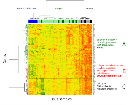 Heatmap of 138 genes up-regulated in OSCC. Expression values for each row (gene) are scaled to z-scores for visualization. Margins and tumors annotated with darker colors above the heatmap are from patients who experienced recurrence.