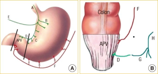Schematic drawings of the abdominal (A) and the perinea | Open-i