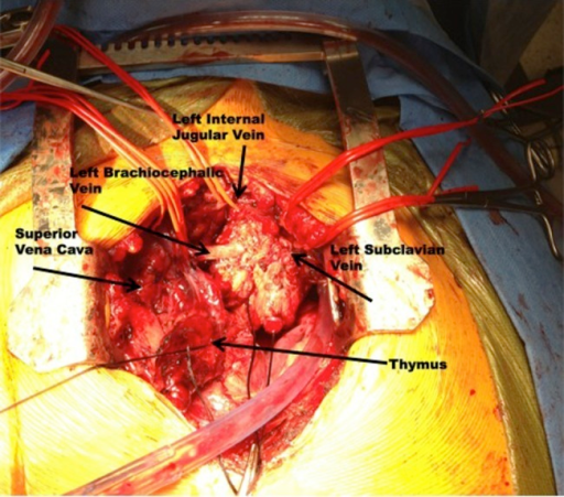 Intraoperative Photography Demonstrating The Epithelioi Open I