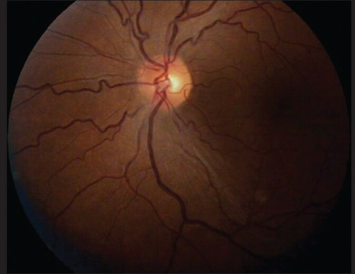 Left Eye Fundus picture showing reduced disc edema
