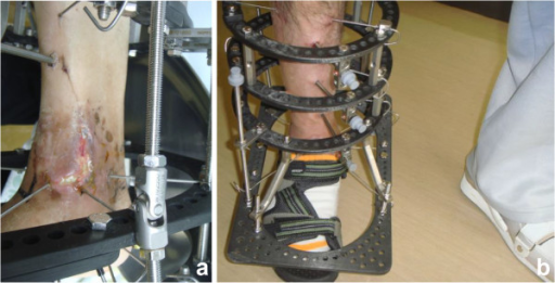 Postoperative appearance. (a) Postoperative skin necrosis at the medial skin incision. (b) The external fixator of the foot was removed 6 weeks after surgery.