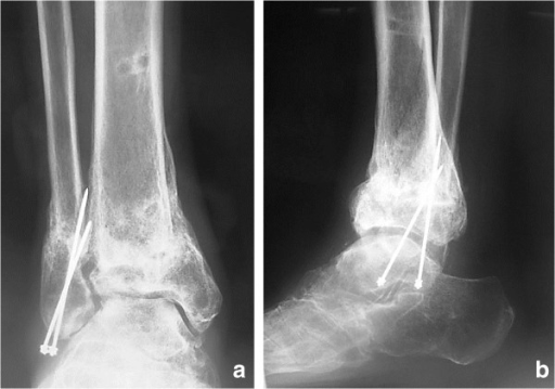 Postoperative radiographs. (a, b) Radiograph after removal of the external fixator, showing bone union.