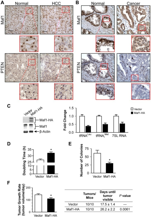 "Increased Maf1 expression suppresses cellular transformation and tumorigenesis, consistent with its diminished expression in human cancer tissues.Nuclear Maf1 expression is decreased in PTEN negative human prostate and liver cancers. Immunohistochemistry of frozen human liver tissue (A) and paraffin-embedded human prostate tissue (B) with Maf1 or PTEN antibodies. Photomicrographs show representative staining of cancerous tissue (right) and adjacent normal tissue (left). Insets represent enlargements of areas highlighted. Scale bars represent 50 µm. (C) Increased Maf1 expression results in repression of RNA polymerase III-dependent transcription. Immunoblot analysis of protein lysates from Huh7 stable cell lines with vector or human Maf1-HA expression plasmid using HA (ectopic Maf1-HA), Maf1, or β-actin antibodies (left). qRT-PCR was performed using RNA isolated from stable cell lines with primers for pre-tRNALeu, pre-tRNAiMet, 7SL RNA, using GAPDH as an internal control (right). Values are the mean ±S.E. (n≥3). Fold changes in transcripts were statistically different from vector controls (Student t-test, pre-tRNALeu and pre-tRNAiMet, p = 0.0001, 7SL RNA, p = 0.0025). (D) Effect of increased Maf1 expression on Huh7 cell doubling time. Stable cell lines described in ""C"" grown on duplicate plates were trypsinized and counted daily. Values are the mean ±S.E. (n≥3), p = 0.0001. (E) Increased Maf1 expression represses anchorage-independent growth. Stable cell lines were analyzed for growth in soft agar. Colonies>100 uM were counted. Values are the means ±S.E. (n≥3), p = 0.005. (F) Tumor growth rate is repressed and visible tumor formation is delayed in mice with cells expressing increased Maf1. Two independent stable cell lines expressing Maf1 were injected subcutaneously into the groins of nude mice (10 mice per group). Calculated tumor growth rates shown (left). The day of first visible tumors noted are shown in the table (right). Values shown are the means ±S.E., p = 0.02."