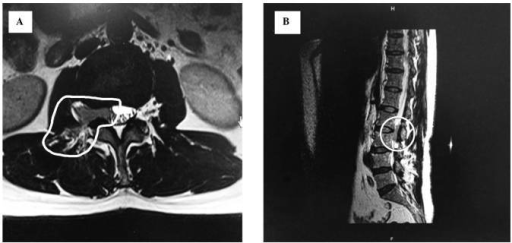 Contrast enhanced magnetic resonance imaging of the lumbar spine revealed (A) a 4.9×2.1×1.8 cm homogeneously enhanced and (B) ill-defined mass from vertebrae L2–L3.