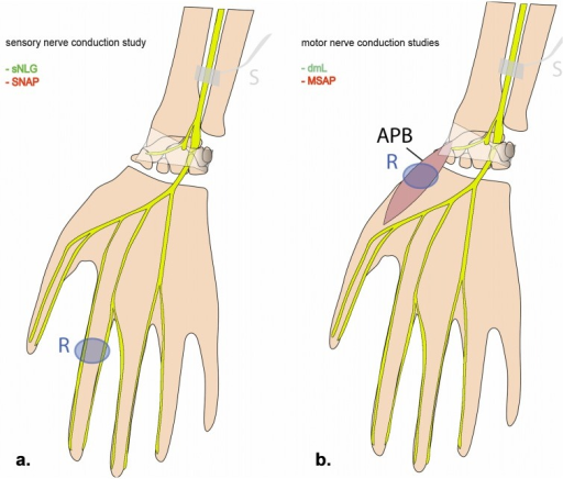 Schematic drawing of median nerve conduction measurements.Sensory nerve conduction study (a): stimulation is administered at the distal forearm; sensory nerve conduction velocity (sNCV) and sensory nerve action potential (SNAP) are recorded from the digital nerve of the index finger in antidromic technique. Motor nerve conduction study (b): stimulation is administered at the distal forearm; distal motor latency (dml) and compound muscle action potential (CMAP) are recorded from the APB. Electroneurographic parameters probing axon and myelin sheath integrity are printed in red and green, respectively. APB: abductor pollicis brevis muscle; S: stimulation site; R: recording site.