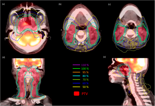 The isodose distributions on transverse, coronal, and sagittal views for one representative nasopharyngeal carcinoma case planned by helical tomotherapy using PET/CT image sets. (a) At the nasopharyngeal region. (b) At the upper neck region near the parotid glands. (c) At the upper neck region near the submandibular glands. (d) Coronal view. (e) Sagittal view.