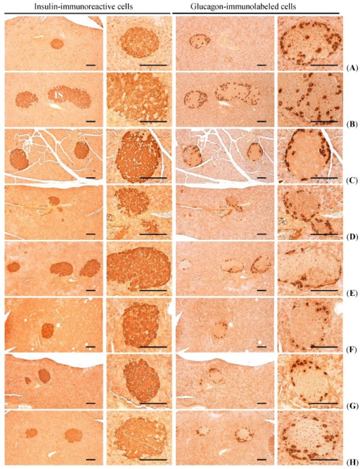 Representative histological images of the insulin- and glucagon-immunoreactive cells in the pancreas, taken from NFD or HFD supplied mice. (A) Intact control: Normal pellet diet supplied vehicle control mice; 10 mL/kg of distilled water oral administered mice; (B) HFD (vehicle) control: 10 mL/kg of distilled water oral administered mice with HFD supply; (C) Simvastatin: 10 mg/kg of simvastatin oral administered mice with HFD supply; (D) Metformin: 250 mg/kg of metformin oral administered mice with HFD supply; (E) GT400: 400 mg/kg of GT oral administered mice with HFD supply; (F) fGT400: 400 mg/kg of fGT oral administered mice with HFD supply; (G) fGT200: 200 mg/kg of fGT oral administered mice with HFD supply; (H) fGT100: 100 mg/kg of fGT oral administered mice with HFD supply. NFD, normal fat pellet diet; HFD, high fat diet; GT, green tea extracts; fGT, Aquilariae lignum-fermented green tea extracts. All immunostained by avidin-biotin-peroxidase complex. Scale bars = 80 µm.