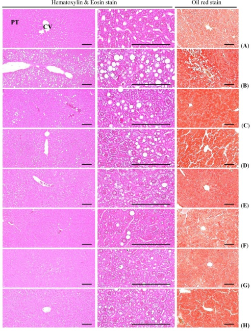 Representative histological images of the liver, taken from NFD or HFD supplied mice. (A) Intact control: Normal pellet diet supplied vehicle control mice; 10 mL/kg of distilled water oral administered mice; (B) HFD (vehicle) control: 10 mL/kg of distilled water oral administered mice with HFD supply; (C) Simvastatin: 10 mg/kg of simvastatin oral administered mice with HFD supply; (D) Metformin: 250 mg/kg of metformin oral administered mice with HFD supply; (E) GT400: 400 mg/kg of GT oral administered mice with HFD supply; (F) fGT400: 400 mg/kg of fGT oral administered mice with HFD supply; (G) fGT200: 200 mg/kg of fGT oral administered mice with HFD supply; (H) fGT100: 100 mg/kg of fGT oral administered mice with HFD supply. NFD, normal fat pellet diet; HFD, high fat diet; GT, green tea extracts; fGT, Aquilariae lignum-fermented green tea extracts; CV, central vein; PT, portal triad. Scale bars = 80 µm.