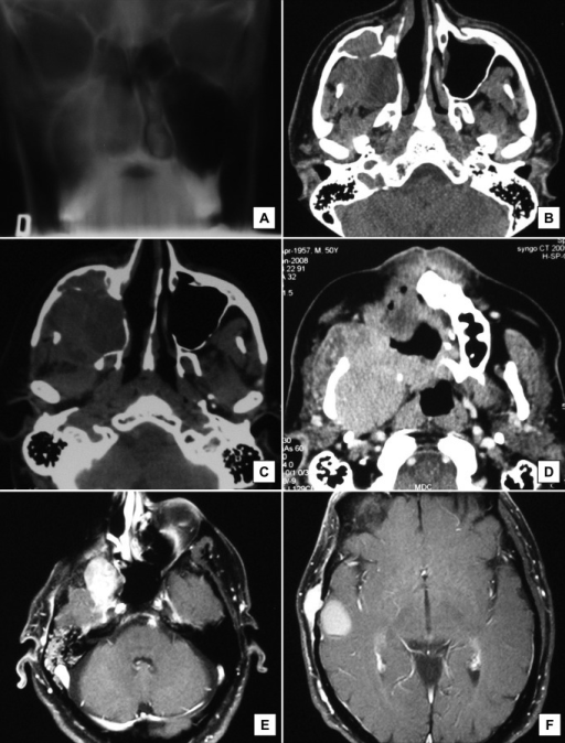 Radiographic appearance of the primary lesion.A = diffuse opacity of the right nasal fossa and maxillary sinus, with destruction of the medial and inferior walls of the maxillary sinus, and thinning of the pavement of the orbita.B = axial computed tomography showing the first recurrence in the maxillary sinus, which occurred 20 years after the surgical treatment of the tumour.C = after conservative treatment the tumour recurred in the right orbit.D = tumour recurred in hard palate.E = magnetic resonance imaging showing a recurrence in the infratemporal fossa.F = single metastasis in the right temporal area of the brain.