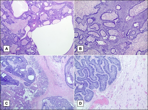 A = low power view of the primary lesion, showing a plexiform pattern, with cystic areas.B = high power view of the primary lesion, showing anastomosing strands of epithelium in fibrous stroma, with tall columnar at the periphery.C = metastatic lesion of the neck, showing infiltration of the salivary tissue of the parotid gland.D = representative image of the brain metastasis.