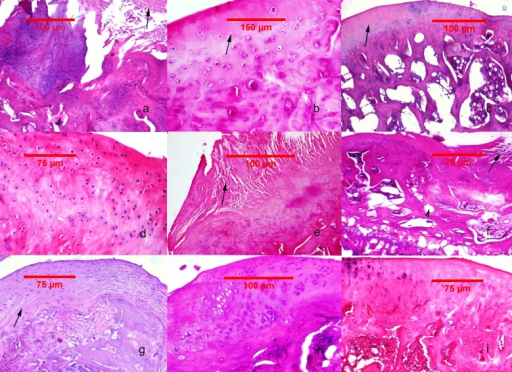 Histological findings in the studied groups.(A–C) MIA-induced joint tissue lesions in Grp P. (A) H&E stain, 10x: deformation of the articular surface, cartilage denudation with microfractures (arrow), bone remodeling, and mesenchymal transformation of the bone marrow (arrowhead). (B) H&E stain, 20x: elongated and flattened chondrocytes and extensive zones lacking viable cells (arrow). (C) PAS stain, 10x: superficial zone of cartilage with loss of matrix in the upper one-third (arrow). (D–F) Cartilage and subchondral bone lesions in GrpM Lo. (D) H&E stain, 20x: intact superficial zone with edema and deep fibrillation, disorientation and flattening of the chondrocytes. (E) H&E stain, 10x: erosion with cartilage matrix loss, branched fissure (arrow). (F) H&E stain, 10x: cartilage erosion; vertical, branched fissures (arrow), cysts (arrowhead) and mesenchymal changes affecting up to three-fourths of the bone marrow volume. (G–I) Cartilage and subchondral bone lesions in GrpM Hi. (G) PAS stain, 10x: intact superficial zone, edema, focal matrix condensation (arrow). (H) H&E stain, 10x: disorientation of chondron columns, with cell death, cell clustering and hypertrophy. Bone marrow mesenchymal changes involving approximately one-fourth of the total volume and increased thickening of the subchondral bone marrow. (I) H&E stain, 10x: intact surface with cell death and hypertrophy in the superficial zone, matrix edema, and no marrow changes in the subchondral bone.