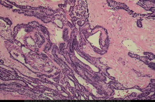 Histological section of the resected tumor showing irregular expanses of squamous epithelium in which basal cells and stellate cells can be seen.  Also present are bands of eosinophilic fibrous tissue.