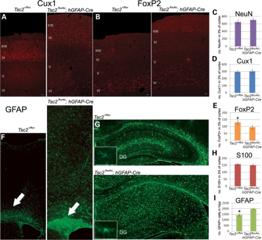 Lamination Defects And Astrogliosis In The Tsc2flox Ko