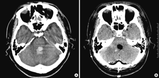 Initial and follow-up CT scans of the brain. (A) CT sca | Open-i