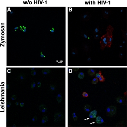 HIV-1 infection exerts a different effect on MDM phagocytosis of zymosan particles or Leishmania parasites.Mock-infected control MDMs (panels A and C) or cells infected for 6 days with NL4-3-Bal-IRES-HSA reporter virus (panels B and D) were put in contact either with complement-opsonized Alexa488-tagged zymosan particles (panels A and B) or GFP-expressing Leishmania parasites (panels C and D) (both shown in green) for 1 hour. Next, excess zymosan particles/Leishmania amastigotes were washed out and MDMs cultured for an additional 3 hours. Cells were then fixed, mounted and immunostained for HSA (shown in red) and DNA (using DRAQ5, shown in blue) to detect HIV-1-infected cells and Leishmania DNA/host cell DNA, respectively. Shown are representative images obtained by confocal microscopy. Arrows indicate uninfected bystander MDMs displaying numerous internalized Leishmania parasites.