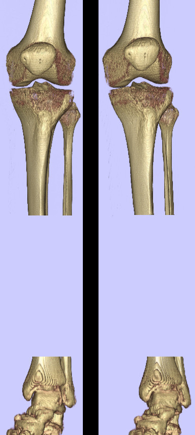 Tibial anatomic reference frame. The tibia is aligned similar to the femur, treating the knee joint as a simple hinge. The centre of the talus is used as a distal landmark.