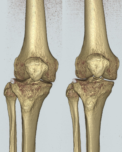 Patient 2 femur before and after realignment. Before (left) and after (right) realignment of patient 2 femur to anatomic based reference frame. Note change of more than 5 degrees in axial alignment.