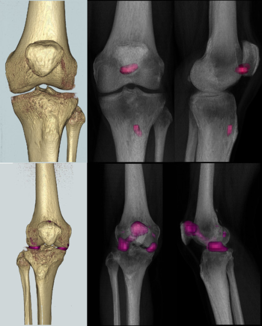 3D reconstructions of SPECT and bone surface. The SPECT hot spots are demonstrated at our chosen SPECT threshold (three times mean of the reference region) as a 3D surface reconstruction (left) and radiolucent (right) views (patient 1 top, patient 2 bottom row).