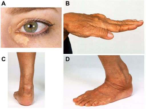 Tendon Xanthoma Discrete clinical mani...
