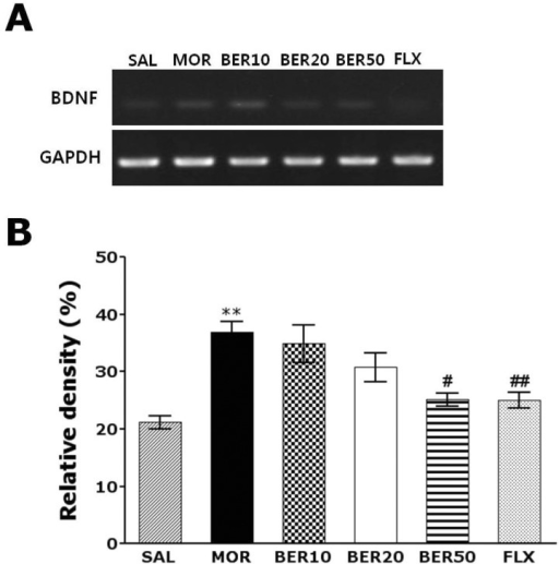 RT-PCR bands (A) and their relative intensities (B) of brain-derived neurotrophic factor (BDNF) mRNA in the rat hippocampus after withdrawal from repeated saline or morphine administration. **p<0.01 vs. SAL group; #p<0.05, ##p<0.01 vs. MOR group.