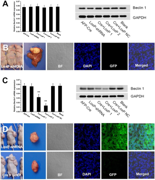 Efficacy of AFP-Cre/LoxP-shRNA system for HCC tissue-specific RNAi in vivo.(A,B) Mouse model of HCC via orthotopic implantation of HCCLM3 cells was established. Q-PCR and western blot analysis showed that intravenous injection of the AFP-Cre/LoxP-shRNA-Beclin1 did not knockdown Beclin 1 gene. GFP indicator analysis showed no GFP expression after the LoxP-shRNA vector was intravenously given, suggesting that the system did not enter the tumor in the liver. (C,D) Mouse model of HCC via subcutaneous inoculation of HCCLM3 cells was established. Q-PCR and western blot analysis showed that intratumoral injection of the AFP-Cre/LoxP-shRNA-Beclin1 could efficiently silence target gene (Beclin 1) in vivo. GFP indicator indicated that the AFP-Cre/LoxP-shRNA could efficiently infect and work in HCC tissue in vivo (GFP fluorescence diminished after intratumoral injection of the AFP-Cre/LoxP-shRNA, the LoxP-shRNA alone served as control). (Cre+LoxP: infection of AFP-Cre/LoxP-shRNA-Beclin1; AFP-Cre and LoxP-shRNA: infection of AFP-Cre or LoxP-shRNA alone).