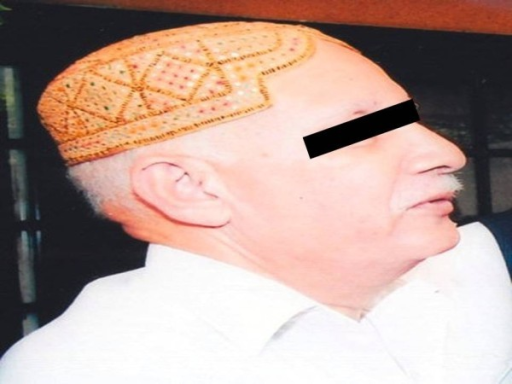 Photograph of the patient while on sorafenib treatment showing hypopigmentation of face, hair loss over scalp, eye brows and moustache.