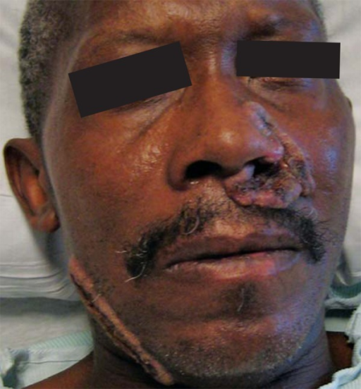 Patient with a couple of verrucous and eroded plaques on the face