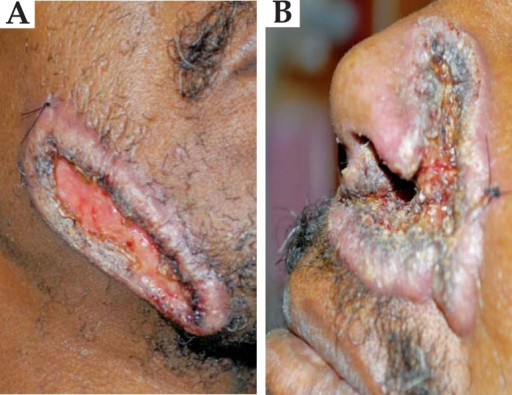 A close up of the lesions on the face