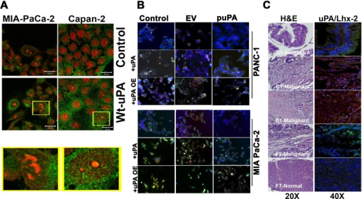 Nuclear uPA regulates expression of Lhx2 in pancreatic cancer cells. (A) MIA-PaCa-2 and Capan-2 cells were left untreated or incubated with 20 nM of recombinant WT-uPA for 1 h, fixed in MeOH, and stained with anti-uPA rabbit polyclonal Abs and Alexa 488–conjugated anti-rabbit secondary Abs. Nuclei were counterstained with propidium iodide (red). Green staining denotes cytoplasmic and nuclear localization of uPA. (B) MIA PaCa-2 and PANC-1 cells plated and grown on chamber slides were transfected with pSV (scrambled vector) or puPA to lower uPA or uPA-encoding plasmid for uPA overexpression (pUPAOE). Nontransfected cells were also incubated with exogenously added WT-uPA protein. Cells were immunoprobed for uPA (green) and Lhx2 (red) and mounted with DAPI-containing mounting medium, and fluorescent photomicrographs were obtained as described (Stepanova et al., 2008). (C) Human pancreatic cancer tissue array (± cancer) was stained with H&E or immunoprobed for uPA or Lhx2 (A1, C1, E1, and F2 are malignant pancreatic adenocarcinoma tissues, and F7 is normal pancreatic tissue).