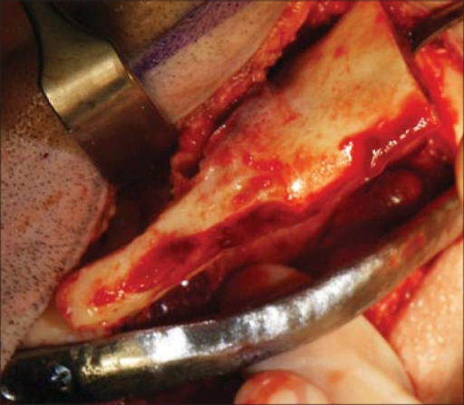Intraoperative photograph of case 3 with reconstruction plate applied and resected fragment being lifted from the wound without the need to remove the reconstruction plate which was situated at the lower border of mandible. The reconstruction plate maintains correct orientations of the mesial and distal resection stumps