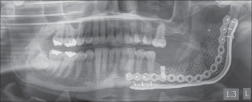 Immediate post dental implant insertion panoramic radiograph from Case 2 showing dental implant placed into the reconstructed alveolus of the left posterior mandible