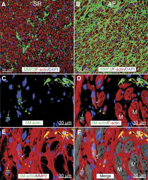 Representative confocal images of matrix metalloproteinases (MMP2) labelling (green) in RFW in a patient in SR (A) and in a patient with AF (B). Nuclei are stained blue with DAPI and f-actin is stained red with phalloidin conjugated with Alexa633.(C and D) are confocal micrographs of a tissue section immunolabelled for SM-α-actin, MMP2 and f-actin from a patient with AF. Arrows indicate interstitial cells which are postive for SM-α-actin. Notice that these cells express MMP2 as shown by yellow colocalization colour. M, myocytes. Nuclei are stained blue with DAPI and f-actin is stained red with phalloidin conjugated with Alexa633.