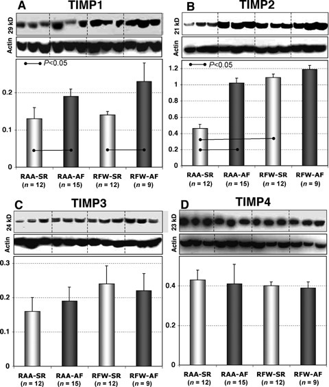 Representative WB and quantitative data of TIMP1 (A), TIMP2 (B), TIMP3 (C) and TIMP4 (D) in different atrial tissues from patients in SR and in patients with AF.