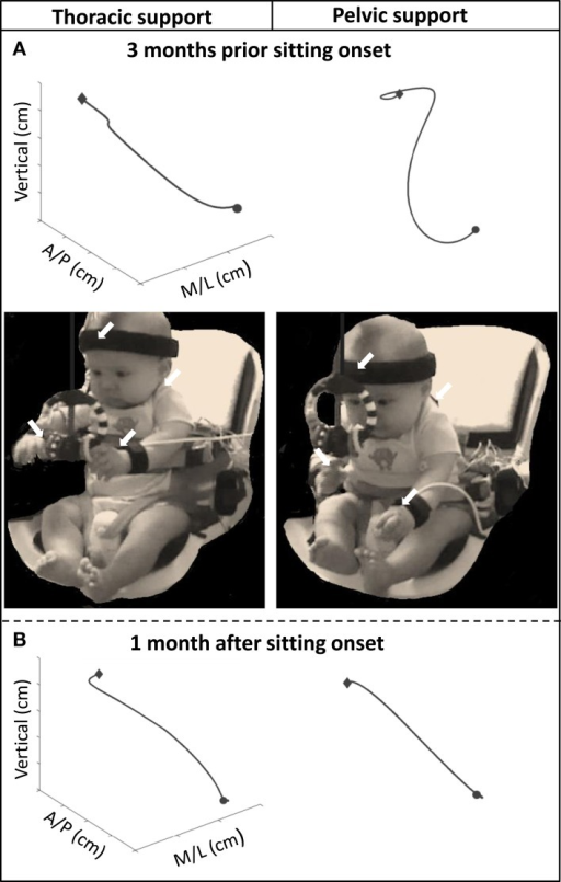 Graphs above showing examples of the 3D trajectory of a single reach from onset (circular shape) to offset (diamond shape), of one infant with thoracic and pelvic support during (A) 3 months prior to sitting onset and (B) 1 month after sitting onset. Photographic images show infant reaching toward the toy with thoracic and pelvic support at 3 months prior to sitting onset. Arrows indicate location of kinematic sensors.